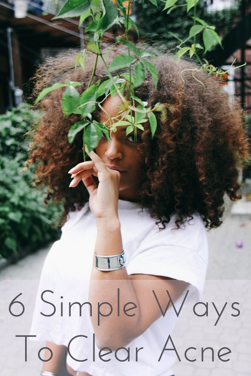 6 Simple Ways To Clear Acne