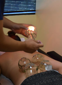 cupping-flame